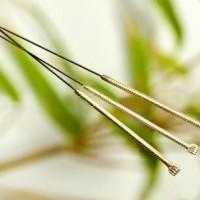 Akunpunktur lindrer smerter og sygdomme